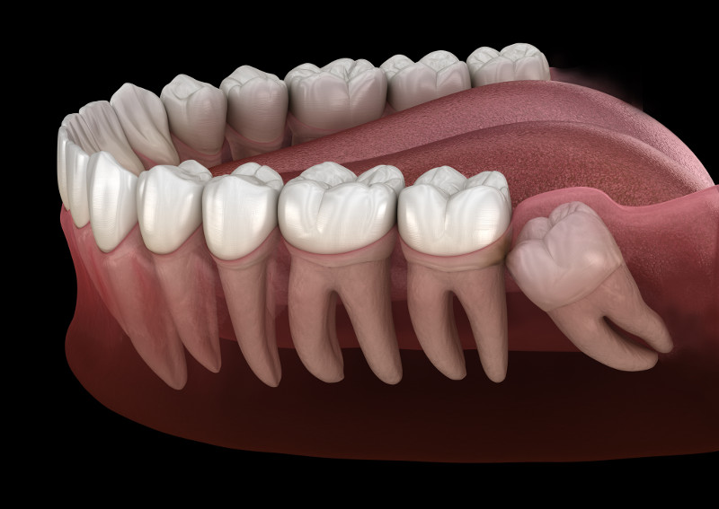 tooth removal in Vallejo